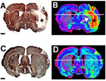 Innovative diagnostic agent for high resolution mapping of acute cerebral ischemia